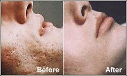 Microdermabrasion Before & After
